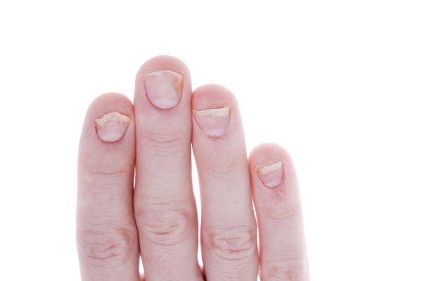 MSC Noticias - Artritis-Psoriatica Comstat Rowland Salud