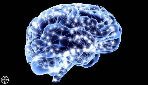 MSC Noticias - Esclerosis-Múltiple_cerebro Grupo Open Mind Salud