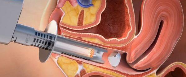 El rejuvenecimiento vaginal es una opción para las mujeres maduras y en etapas de postparto